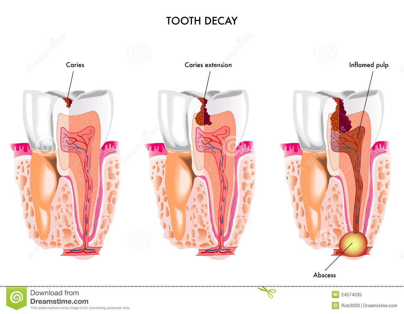 kerusakan pada gigi